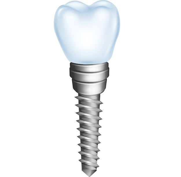 Implante dentário isolado no fundo branco