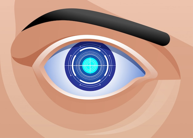 Implante ocular