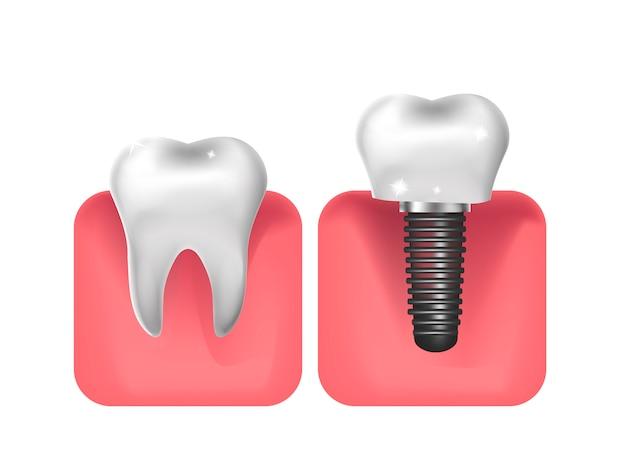 Implantes dentários, estilo realista de próteses. odontologia, conceito de dentes saudáveis. ilustração