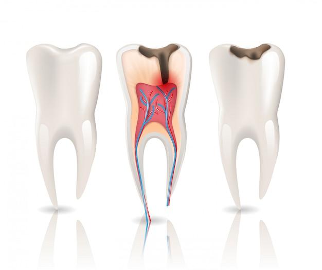 Infecção por cáries no esmalte e dente de saúde
