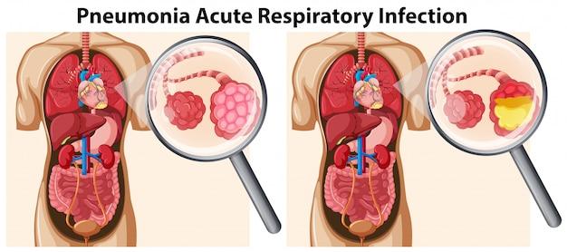 Infecção respiratória aguda por pneumonia