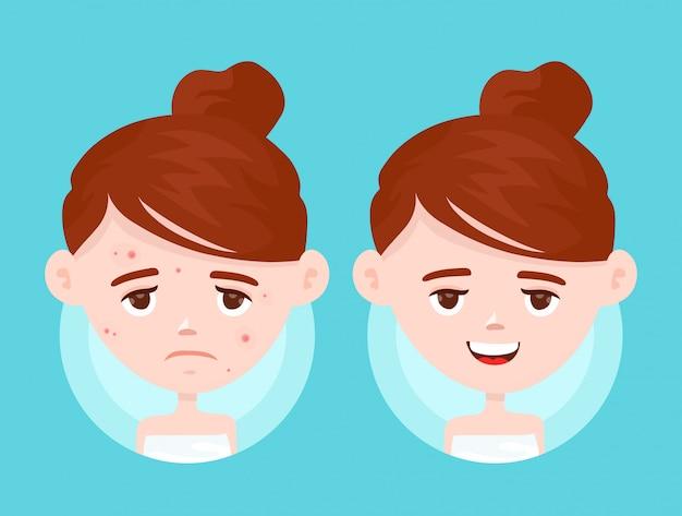 Infeliz menina adolescente lutando com acne