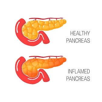 Inflama o conceito de pâncreas. médico de glândula saudável e doente.