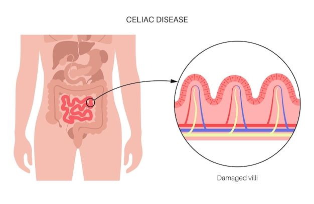 Inflamação da doença celíaca. vilosidades intestinais danificadas na área de superfície das paredes intestinais.