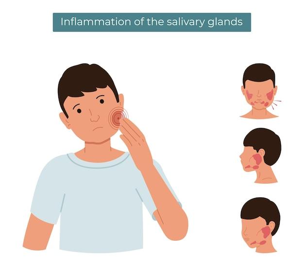 Inflamação das glândulas salivares
