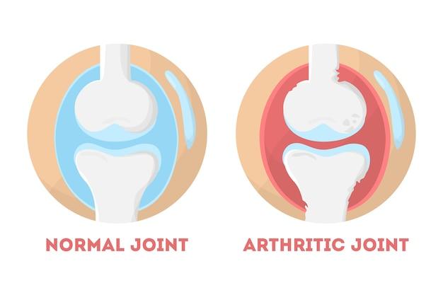 Infográfico anatômico de articulação humana normal e artrítica