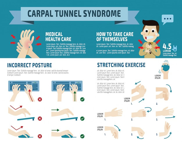 Infográfico da síndrome do túnel do carpo,