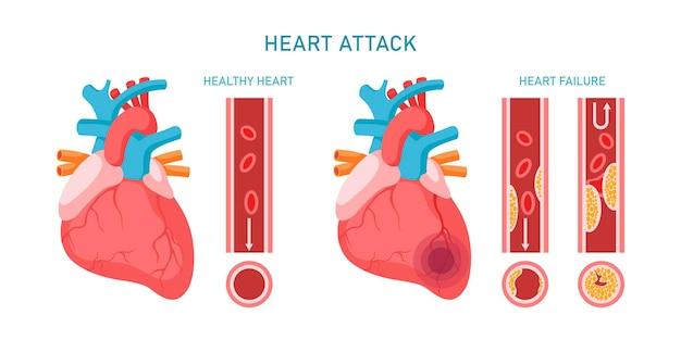 Infográfico de ataque cardíaco e doenças cardiovasculares. coração saudável e falido, sintomas e diagnóstico da aterosclerose. ilustração em vetor plana. projeto para medicina, tratamento, conceito de saúde