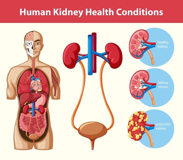 Infográfico de condições de saúde renal em humanos