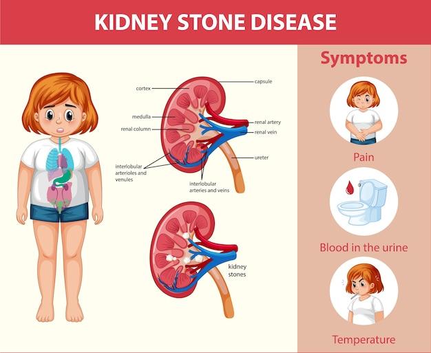 Infográfico de estilo cartoon de doenças de pedras nos rins