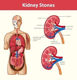 Infográfico de estilo de desenho animado da anatomia de pedras nos rins humanos