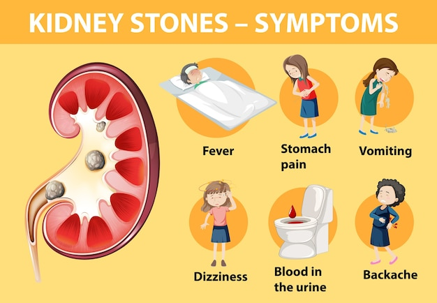 Infográfico de estilo de desenho animado de sintomas de pedras nos rins