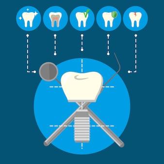 Infográfico de implante dentário e dentes dentários