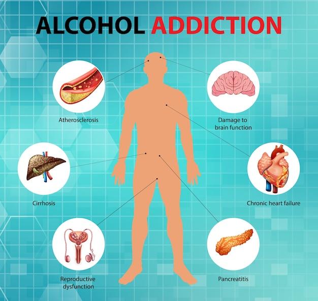 Infográfico de informações sobre dependência de álcool ou alcoolismo