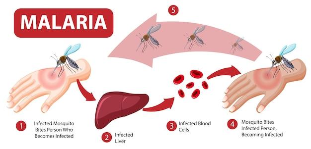 Infográfico de informações sobre sintomas de malária