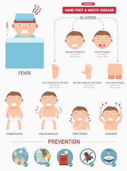 Infográfico de mão, febre aftosa