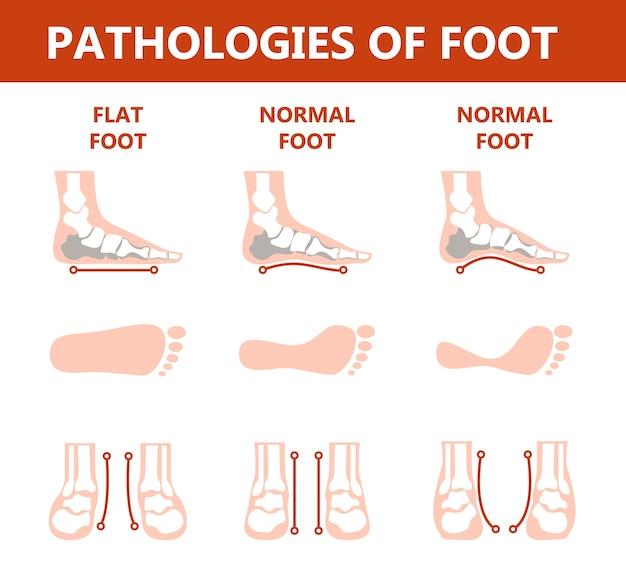 Infográfico de patologias do pé. anatomia do pé. deformado