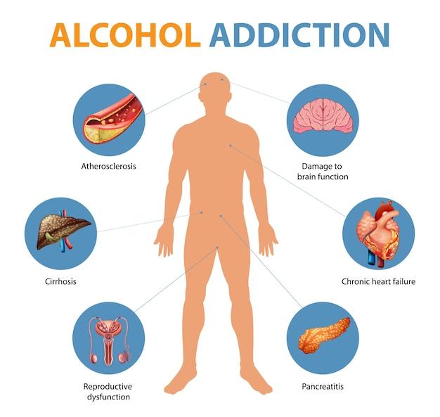 Infográfico de sintomas de dependência de álcool