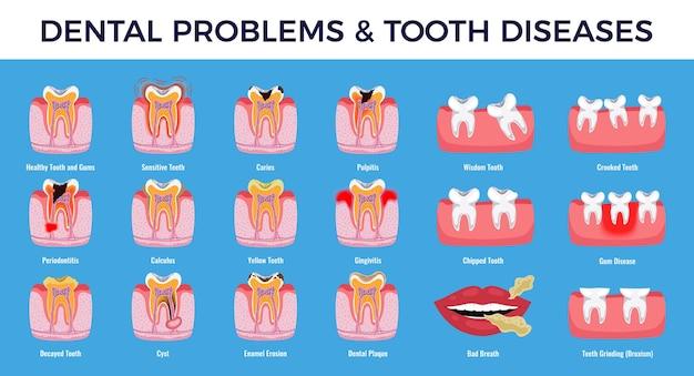 Infográfico educacional de problemas dentários gráfico com cárie, púlpito, inflamação, placa dentária, erosão do esmalte