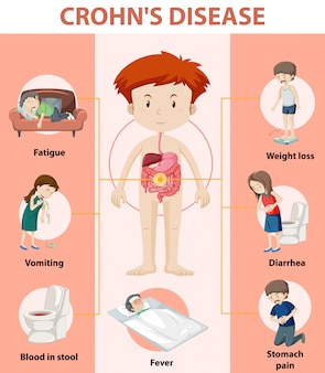 Infográfico médico da doença de crohn