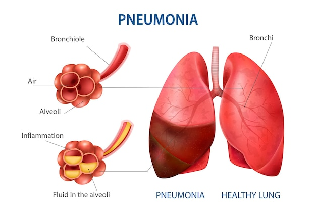 Infográfico realista de pneumonia