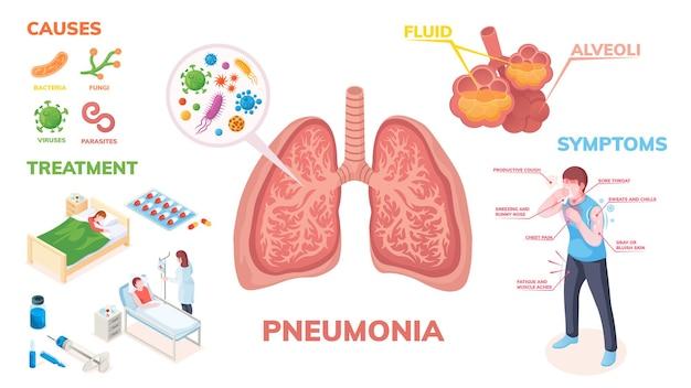 Infográficos da doença pulmonar pneumonia nos sintomas