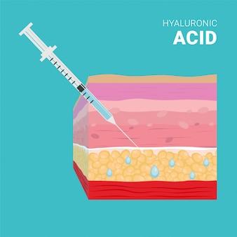 Injeção de ácido hialurônico, seringa fina