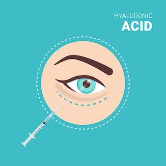 Injeção de ácido hialurônico