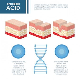 Injeção de enchimento de ácido hialurônico infográfico