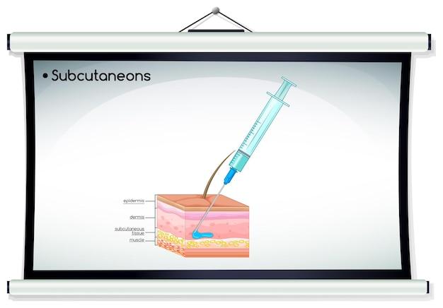 Injeção de subcutâneo na pele humana