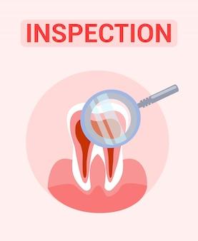 Inspeção de dente, conceito de banner de exame