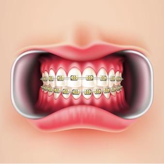 Instalação de aparelho dentário