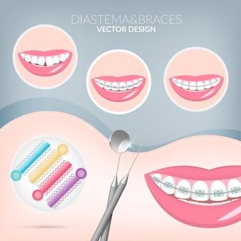 Instrumentos de odontologia