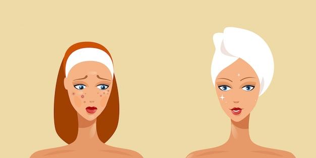 Jovem mulher antes e depois do tratamento da acne conceito horizontal de cuidados com a pele retrato
