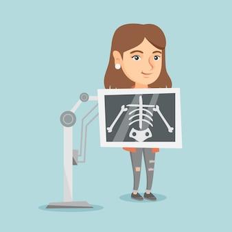Jovem mulher caucasiana durante o procedimento de raio x.