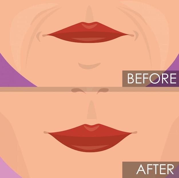 Lábios de mulher antes e após o tratamento