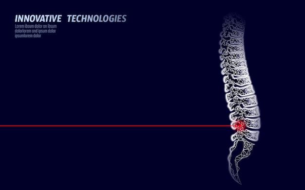 Lesão na coluna vertebral humana por fisioterapia a laser. dor área cirurgia operação moderna lombo medicina tecnologia baixo poli triângulos 3d render feminino volta hérnia ilustração