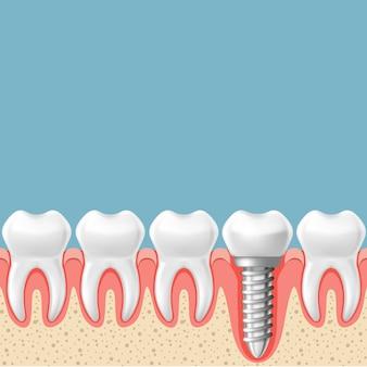 Linha de dentes com implante dentário - esquema de próteses dentárias, corte da gengiva