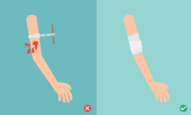 Maneiras erradas e certas primeiros socorros tratamento de emergência, ilustração