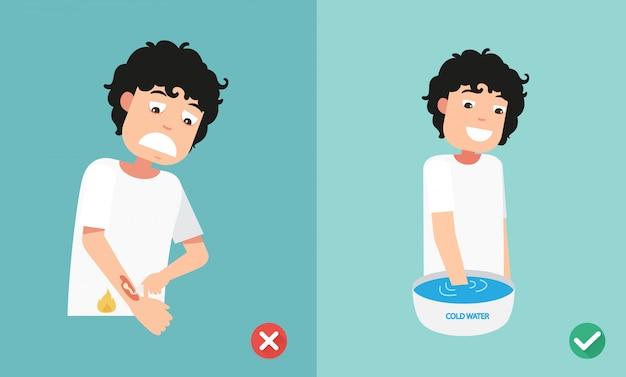 Maneiras erradas e corretas primeiros socorros tratamento de emergência queimadura de pele, ilustração