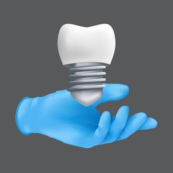Mão de dentista usando luva cirúrgica de proteção azul segurando um modelo de cerâmica do dente. ilustração realista do conceito de implantes dentários isolado em um fundo cinza
