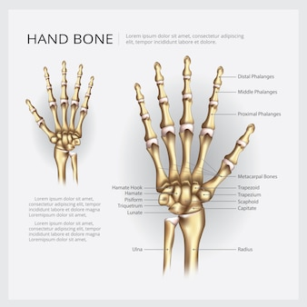 Mão, osso, vetorial, ilustração