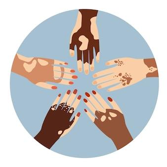 Mãos de diferentes etnias em vários gestos com doença de pele problema de despigmentação