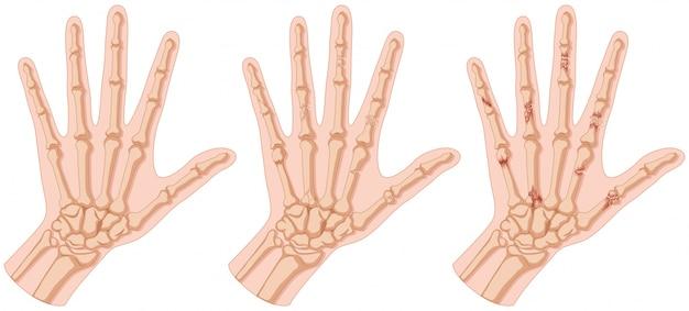 Mãos humanas com ilustração de fratura óssea