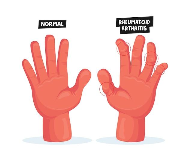 Mãos normais e doentes com artrite reumatóide