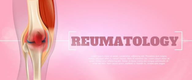 Medicina de reumatologia de ilustração realista em 3d