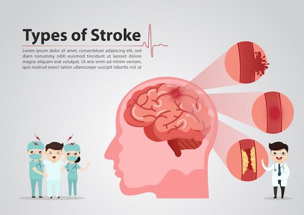 Médico científico da ilustração de acidente vascular cerebral do cérebro humano