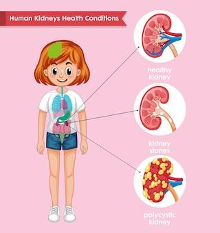 Médico científico, doença renal