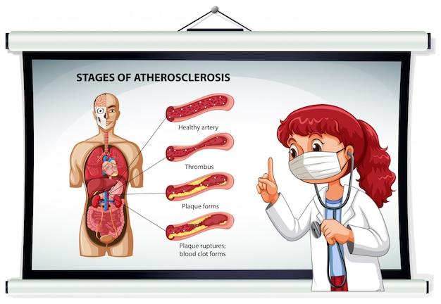 Médico, explicando, fases, de, aterosclerose