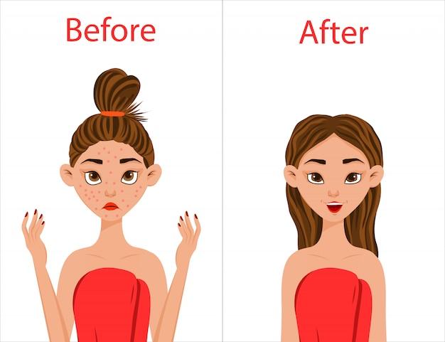 Menina antes e após o tratamento da acne. estilo dos desenhos animados. ilustração.